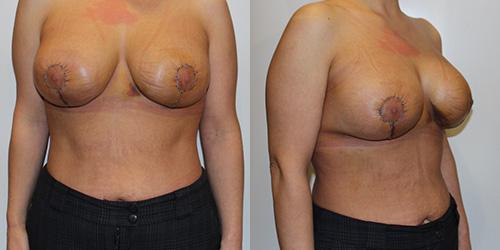 Подтяжка груди фото