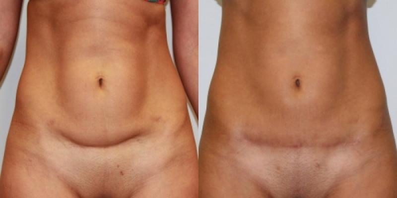 Липосакция грудных желез у женщин