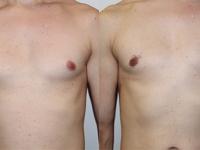 Устранение гинекомастии. Липосакция