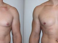 Выполнена липосакция в области груди и удалены железы