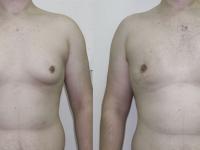 Устранение смешанной гинекомастии