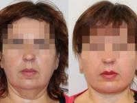 Подтяжка нижней трети лица и подтяжка шеи