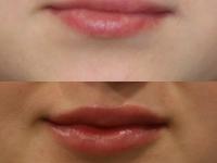 Увеличение губ филером