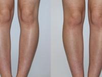 Эндопротезирование голеней имплантами