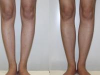 Пластика голеней. Увеличение голени симметричными имплантами 120 мл.