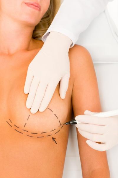 пластика грудных желёз цены действия термобелья При