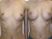 Деформация грудной клетки. Асимметрия молочных желез и сосково-ареолярноко комплекса.