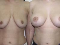 Вертикальная подтяжка груди на имплнтах: справа 275 мл слева 295 мл, круглые, средний профиль.