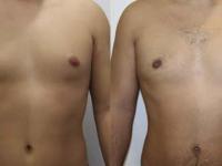 Устранение гинекомастии
