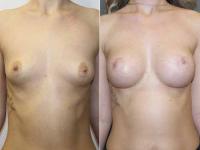 Подтяжка груди по ареоле на анатомических имплантах 255 мл.