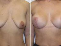 Циркумвертикальная подтяжка груди без имплантов.