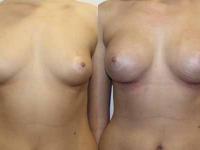 Увеличение груди анатомическими имплнтами 295 мл, высокий профиль.
