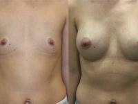 Увеличение груди круглыми имплантами 275 мл.